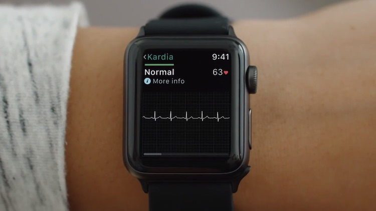 Apple Watch demanda patente sensor ritmo cardiaco
