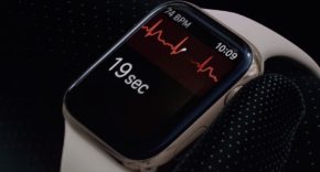 ECG del Apple Watch