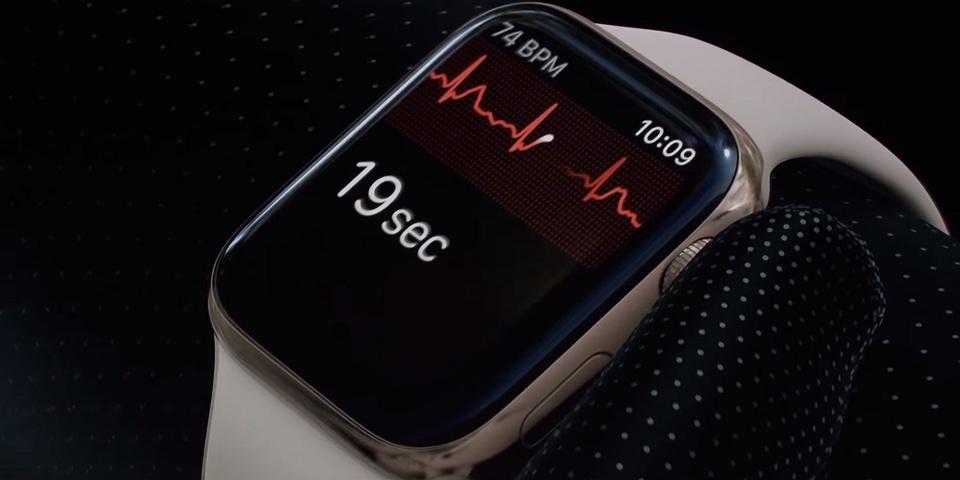 ECG del Apple Watch